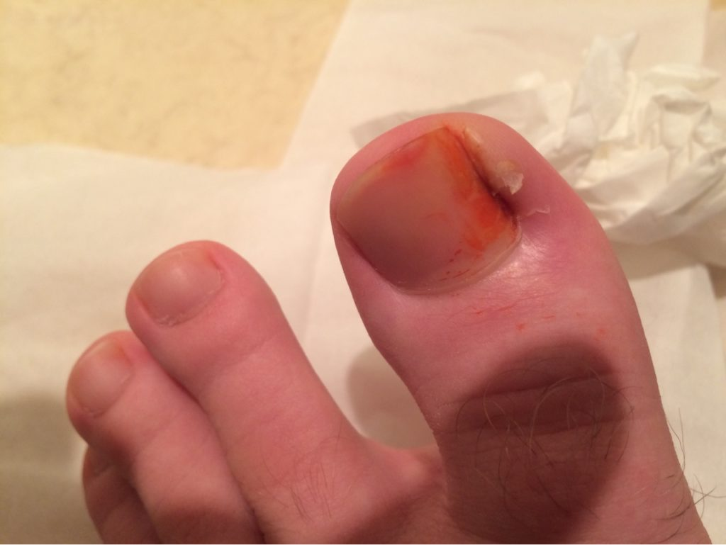 How To Cure An Ingrown Toenail Without Surgery - Benjamin McEvoy